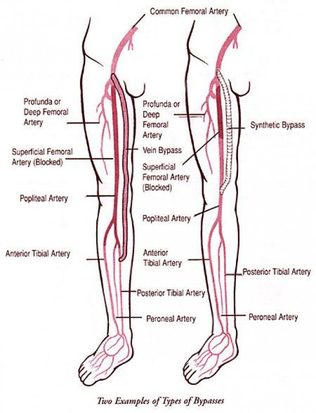 lower extremities diagram two examples of lower extremity bypasses lowerbackpain vascular  lower extremity bypasses lowerbackpain