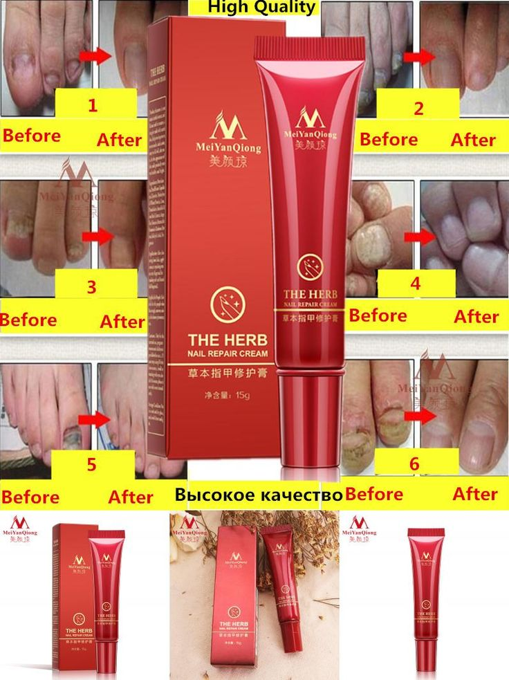 [Visit to Buy] Herbal Nail Treatment Onychomycosis Paronychia Anti Fungal Nail Infection Good Result Chinese Herbal Toe Nail Fungus Treatment #Advertisement