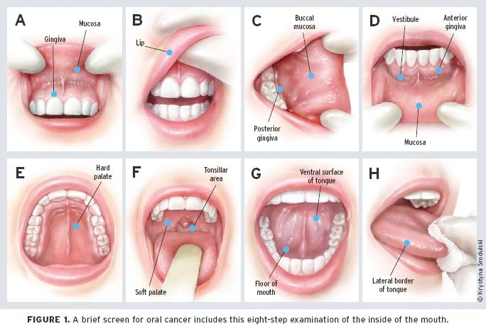 chewing tobacco cancer signs   ORAL CANCER SIGNS AND SYMPTOMS