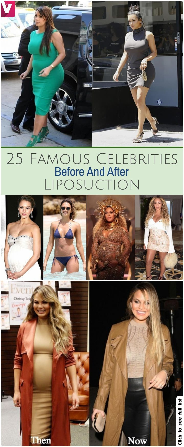 25 Famous Celebrities Before And After Liposuction