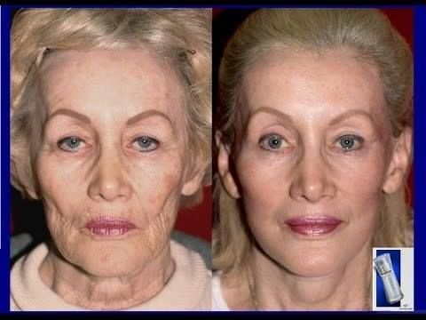 Amazing before and after of best selling skin care on the market! Disclaimer: Of course, individual results vary. Only you can see what happens get a 7 day free trial sample now! http://bit.ly/1YOvG8U