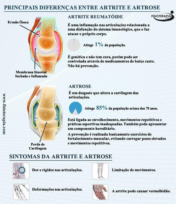 Artrite reumatóide VS artrose