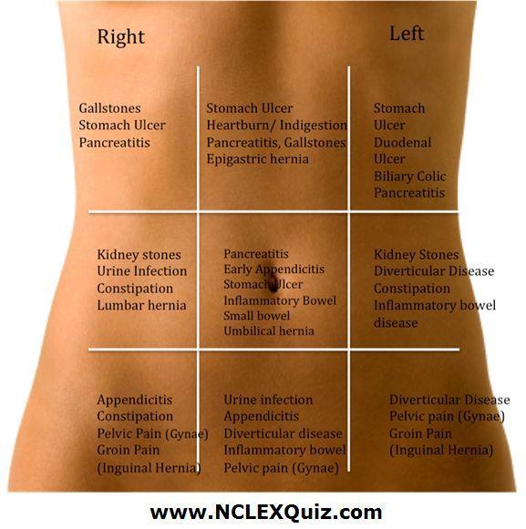 Resultado de imagem para quadrants of abdomen pain