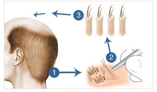 Fue+Hair+transplantation-Vcraft+Cosmetics