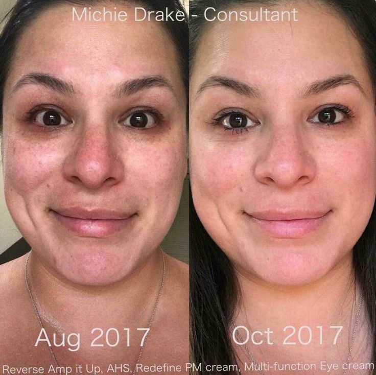 Little differences make huge differences! Few months of consistent use can make subtle changes to a younger looking YOU!! Still don't think it is legit? Not sure if there are skincare items that will make a difference on you? Well ask this beauty Michelle Drake.... 3 months and she looks amazing and her skin tone is flawless!!!! RF products have a 60 day / 100% money back guarantee if you are not satisfied- so WHAT DO YOU HAVE TO LOSE???? Msg me and let's get a new you for 2018!!!