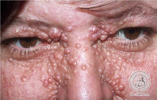 Natural Treatment For Kaposi Sarcoma