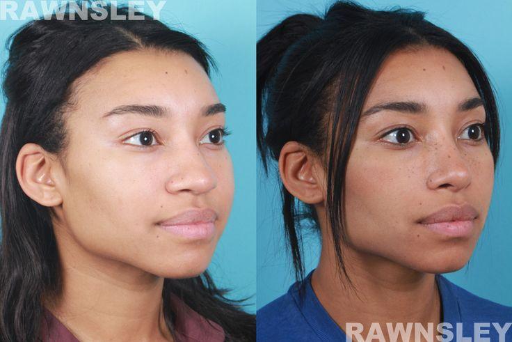 Rhinoplasty Before & After 7 Rawnsley Plastic Surgery
