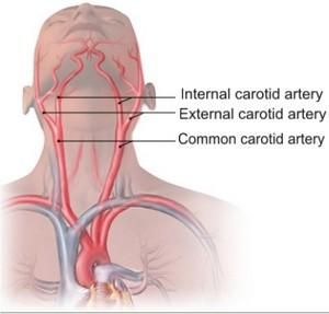 Internal Carotid Artery | branches off the common carotid arteries