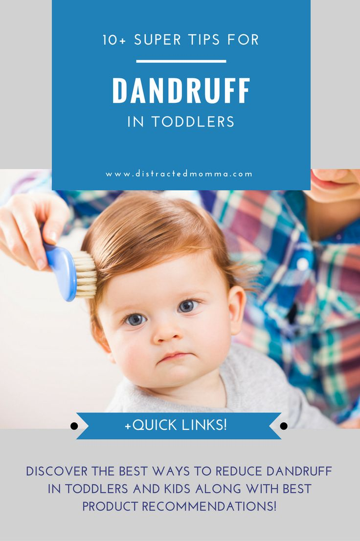Discover the most effective ways to tackle dandruff in toddlers safely