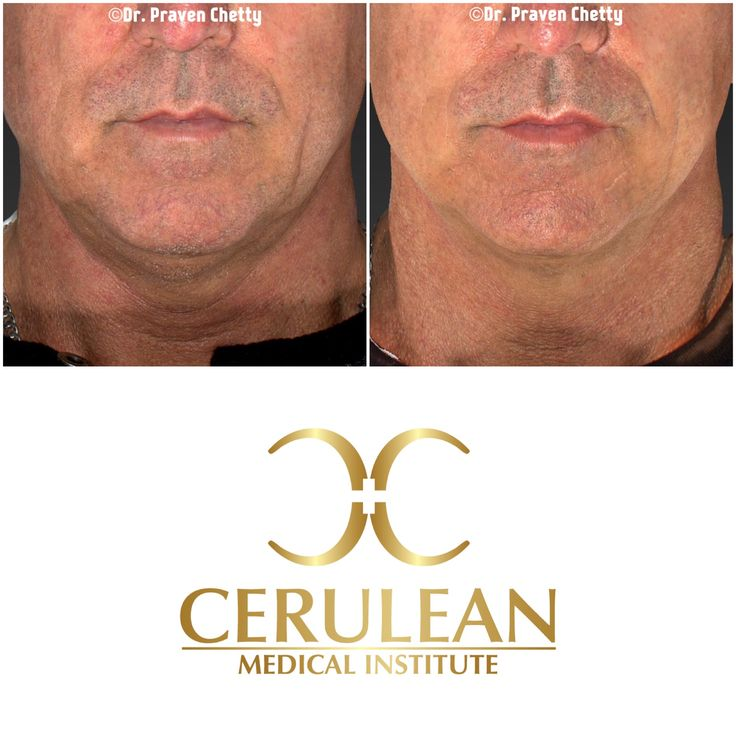 Masculine Monday: Beautiful enhancement of this lovely male clients jawline with non-surgical reduction and tightening of the submentum. Wishing everyone an inspiring week ahead✨ #Wellness #MensHealth #Beautiful #Youthful #MondayMotivation #AntiAging #NonSurgical #NoDowntime #DoubleChin #Cosmetic #Dermatology #Facial #Sculpting #Contouring #SkinTight #DrPravenChetty #CeruleanMedicalInstitute #Kelowna #Okanagan #Ylw