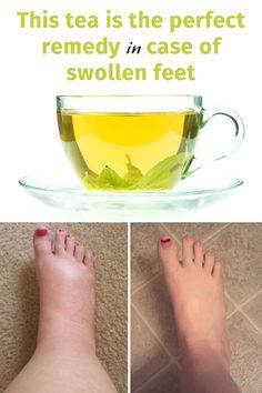 If you experience swollen feet, here is a great article about this issue and how to get rid of this problem with a natural tea. Recipe here: