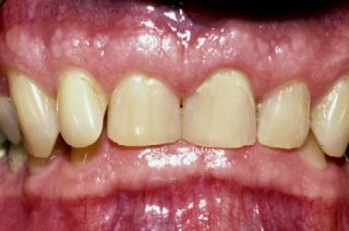 HOW TO FIX A DEEP OVERBITE IN WEAR PATIENTS
