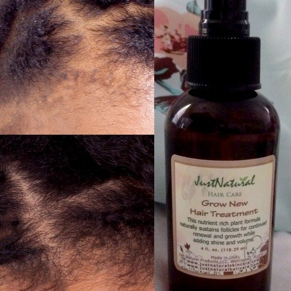 Chemicals in hair products, excessive styling methods, stress, hormonal changes, medicines and nutrition are some factors that can cause hair follicles to go dormant and stop growing. Hair follicles may come back into a healthy growth cycle when the factor which caused them to become dormant is removed. However, once hair follicles die the loss is permanent. This formula helps your hair remain healthy with nutrient rich ingredients for thicker and fuller hair with less breakage.