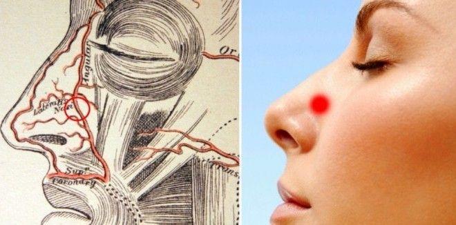 3 formas de prevenir y detener  inmediatamente  un sangrado de nariz.