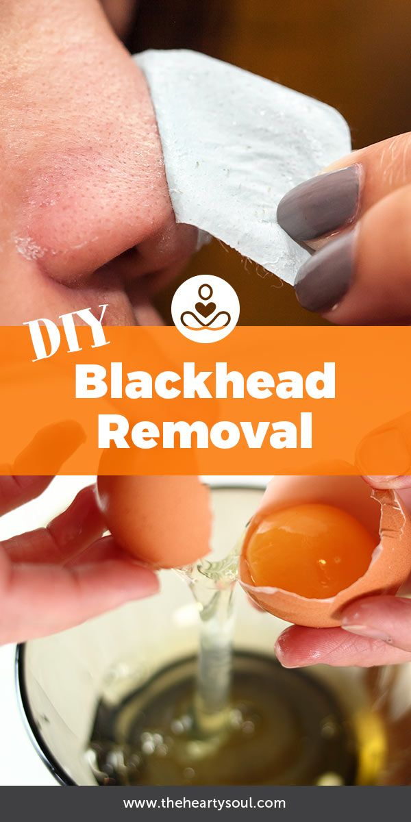 Getting rid of blackheads is tough, these homemade pore strips can help! Clear your skin naturally <3