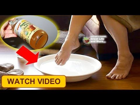 APPLE CIDER VINEGAR- VERIFIED WEAPON IN THE FIGHT AGAINST ARTHRITIS AND JOINT PAINS! http://homeremediestv.com/%f0%9f%98%b1%f0%9f%98%8d-apple-cider-vinegar-verified-weapon-in-the-fight-against-arthritis-and-joint-pains/ #HealthCare #HomeRemedies #HealthTips #Remedies #NatureCures #Health #NaturalRemedies  Joint pain can be very unpleasant and very annoying in performing everyday domestic work. In some people the pain occurs after a long and busy day and  Related Post Apricot Oil  Benefits…
