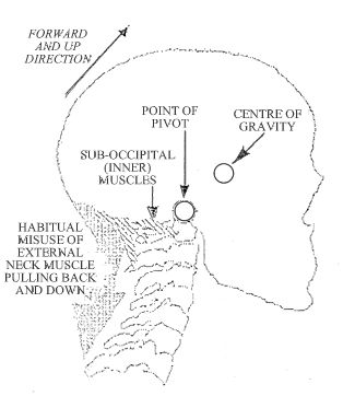 The Role of the Alexander Technique in Back Care.