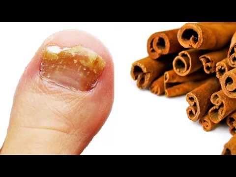 Ningún hongo sobrevive a este potente germicida con canela! Aquí te decimos como prepararlo! - YouTube