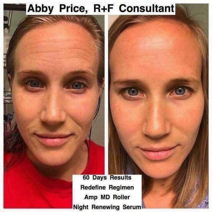 Are you starting to get forehead lines? I KNOW ID DO!!!!  Fillers and Botox will cost you thousands for a temporary fix. Abby, a fellow business owner used Rodan + Fields AMP microneedling roller to stimulate collagen in those lines to make them diminish with new skin! The roller has a year warranty and its 20% off when you buy it with Redefine or Reverse!  🙌🙌🙌  #agebackwards #dontlookolderthanyourage #transformationthursday