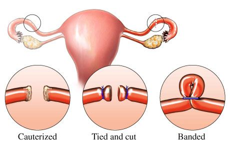 What is female sterilisation?The tubes between the ovary and the womb (the Fallopian tubes) are cut or blocked with rings or clips. This stops the eggs which are released by the ovary from reaching the sperm.