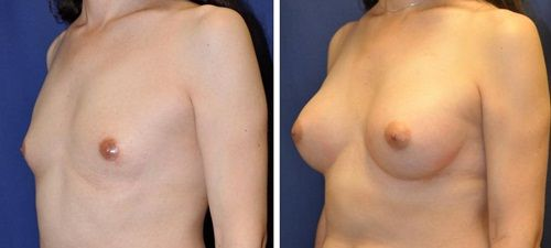 transgender-breast-growth-nude-miley-ciris