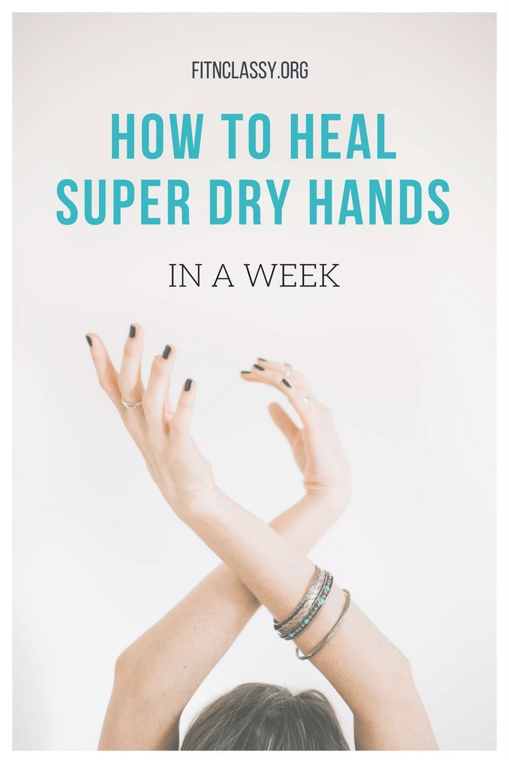 How to heal super dry hands in a week