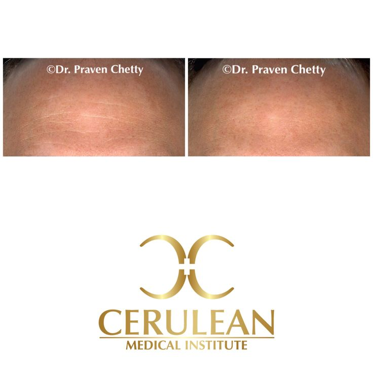 #Botox for men by Dr. Praven Chetty at Cerulean Medical Institute in #Kelowna, BC.