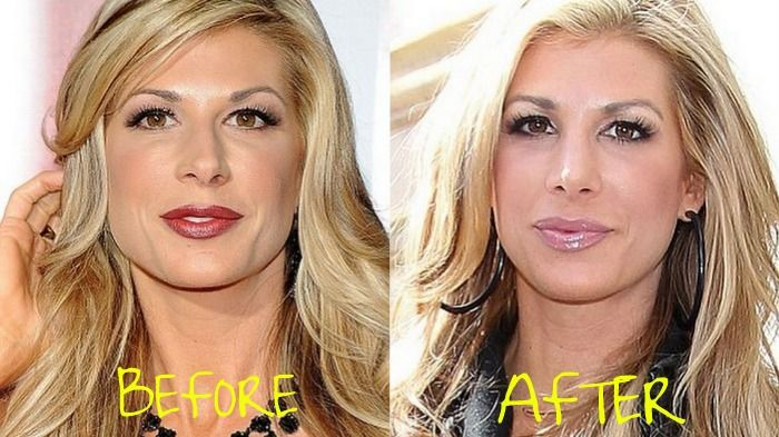 Alexis Bellino's Nose Job has stirred up a bit of controversy.  She claimed to be getting a septoplasty.