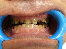 3 patient - Tous les traitements illustrés dans notre galerie de photos ont été réalisés à l'intérieur de notre clinique par nos professionnels de la santé dentaire. - Top Dentiste Budapest, Hongrie