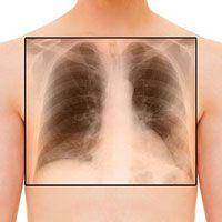 Bronchiolitis Obliterans Organizing Pneumonia