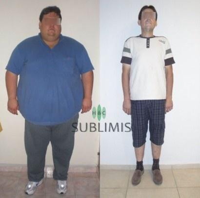 Antes y despues de una banda gastrica. Cirugia realizada en Cordoba, Argentina por especialistas de Sublimis.