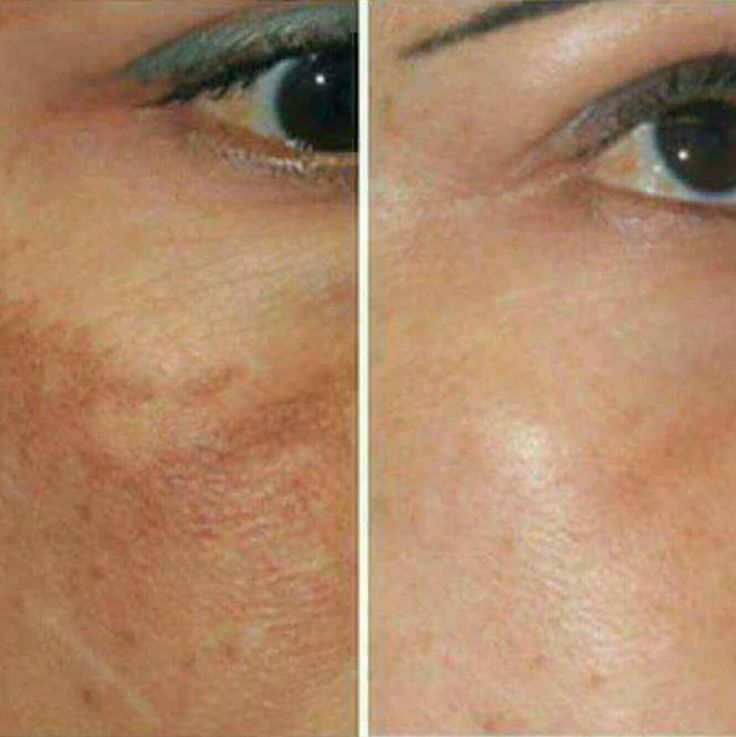 Májfoltra és öregségi foltra a legjobb, öregedés gátló C vitaminos arclemosónk és hidratáló krémünk együttes használata.