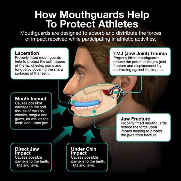 How Mouthguards Help To Protect Athletes. Mouthguards are designed to absorb and distribute the forces of impact received while participating in athletic activities.