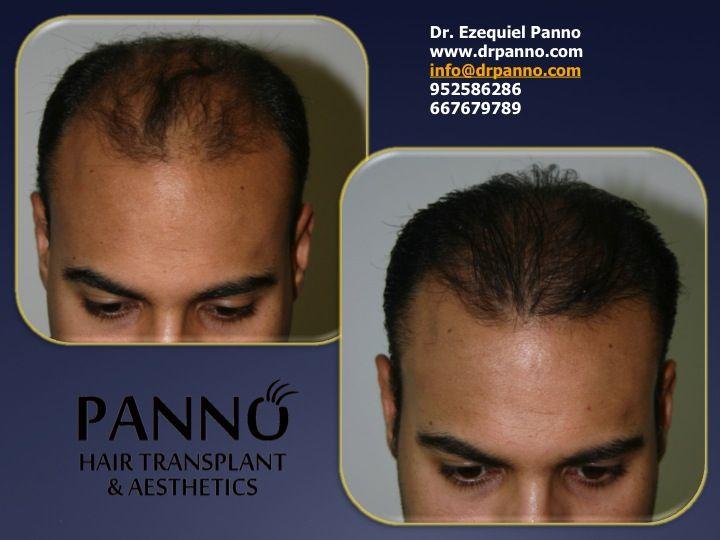 la mesoterpia capilar permite reducir la caida y muerte del pelo, ademas de darle volumen brillo y calidad siendo la opcion para quienes no quieren realizar tratamientos quirurgicos