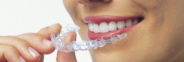Captivate Dental Melbourne provides Invisalign clear braces treatment at Melbourne.