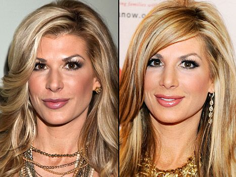 PIC: Real Housewives of Orange County's Alexis Bellino Got a Nose Job - Us Weekly