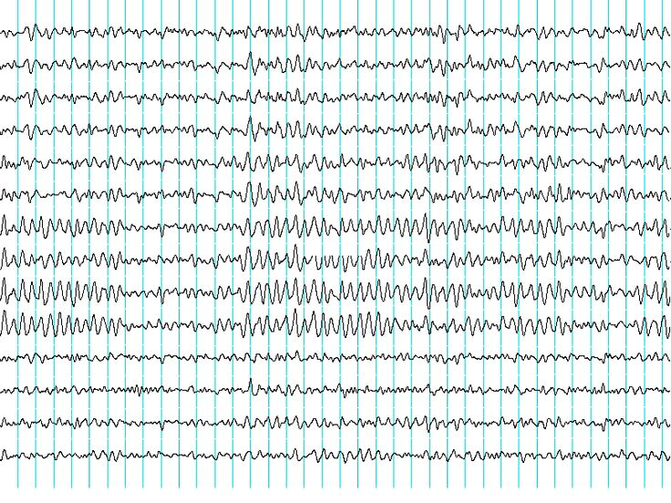 An atypical patient with Cowden syndrome and PTEN gene mutation presenting with cortical malformation and focal epilepsy...  CS has been rarely reported in association with a cortical malformation or epilepsy... These cases suggest that cortical dysplasia needs to be suspected when a CS patient presents with drug-resistant seizures.    http://www.brainanddevelopment.com/article/S0387-7604(12)00070-8/abstract  Image…