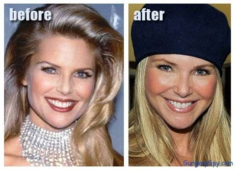 Celebrity Christie Brinkley Plastic Surgery Before And After - http://www.celeb-surgery.com/celebrity-christie-brinkley-plastic-surgery-before-and-after/?Pinterest