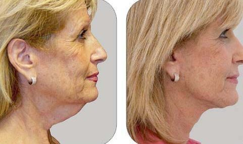 DIY Non-Invasive Energy Facelift With Facial Revitalization Exercises