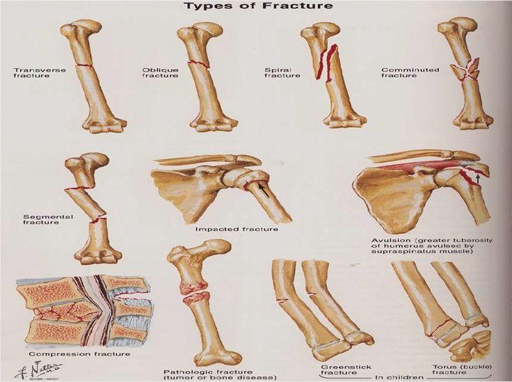 Obat Tradisional kanker Tulang Paling Ampuh
