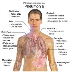 Natural Cures For Pneumonia - How To Cure Pneumonia Naturally | Search Herbal Remedy