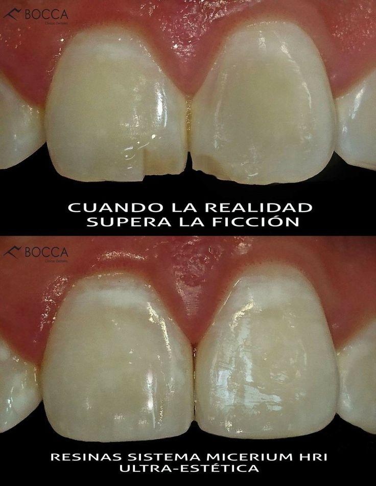 """Semana de los dientes centrales en nuestra clínica, ahora un caso del ataque de la """"Mordisqueta asesina"""", nuestro amigo se fracturo sus bordes incisales, afortunadamente nuestro equipo de profesionales esta siempre listo al rescate. Ven, agenda tu cita y vive una nueva experiencia en odontología. #whatsapp 3006143295 - 3216414518 #pasto #nariño #colombia #boccaclinicasd"""