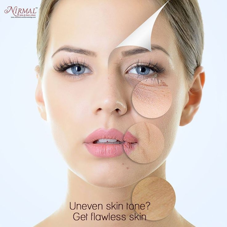 This facial helps in leveling-out your complexion bringing about a uniform skin tone. The procedure works by first stimulating collagen buildup in skin. Vitamins are soon after delivered into skin which helps drive away skin dullness.