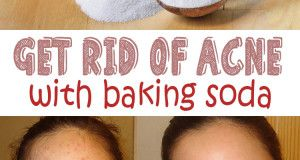 Get rid of acne using baking soda