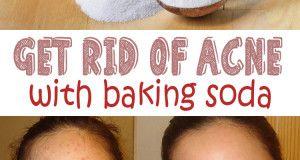Get rid of acne using baking soda