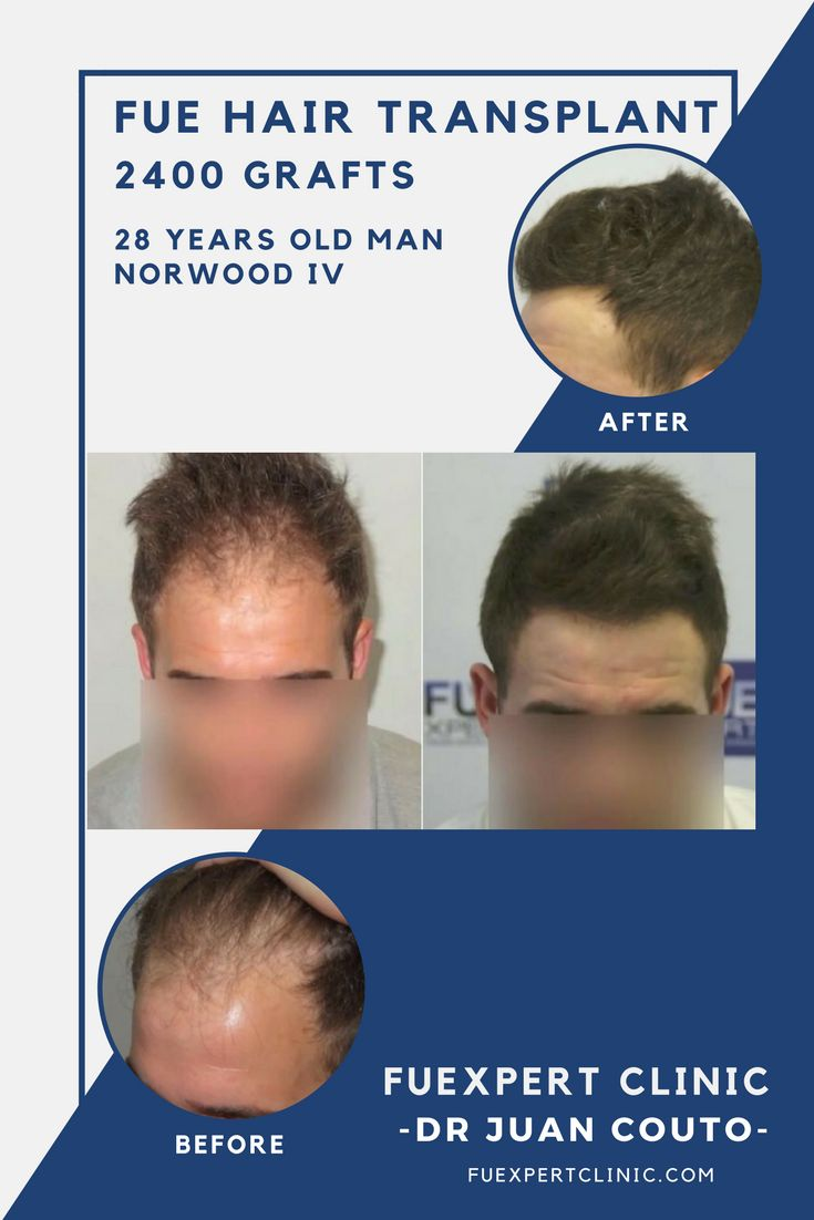 2400 Grafts FUE Hair Transplant by Dr. Juan Couto