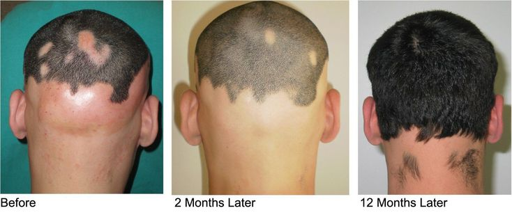 The most common cause of hair loss is a medical condition called hereditary hair loss. About 80 million men and women in the United States have this type of hair loss. Other names for this type of hair loss are:      Male-pattern baldness.     Female-pattern baldness.     Androgenetic alopecia. #HairLossTreatmentForWomen&Men