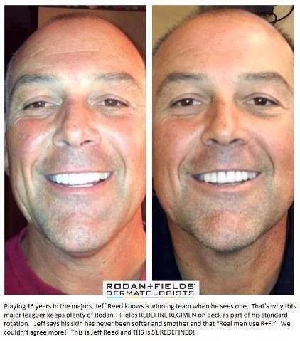 "Playing 16 years in the majors, Jeff Reed knows a winning team when he sees one.  That's why this major leaguer keeps plenty of Rodan + Fields REDEFINE REGIMEN on deck as part of his standard rotation. Jeff says his skin has never been softer and smother and that ""Real Men use R+F.""   We couldn't agree more! This is Jeff Reed, and THIS is 51 REDEFINED.     Visit HopeCasey.myrandf.com to get yours today or email me at hcasey08@gmail.com to learn how you can save 10% AND get FREE shipping!"