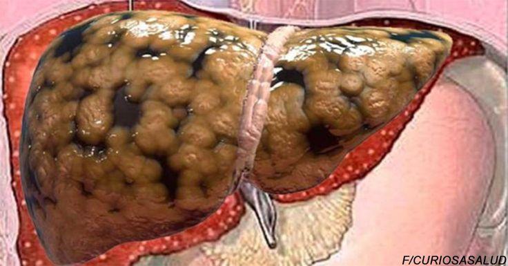 Es bueno que lo apuntes antes de que se borre, medico muestra cómo sacar toda la grasa del hígado en unos días – Curiosa Salud