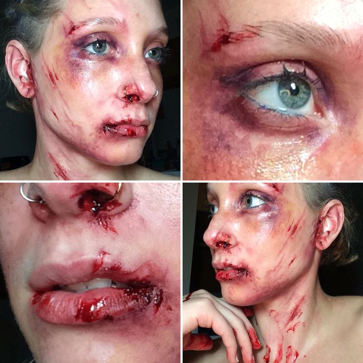 SFX makeup by Janae Smith. Bruise and cuts with Ben Nye bruise wheel, fresh…